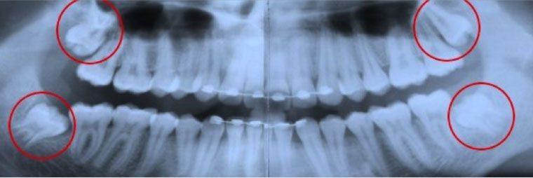 Zahnarzt Altusried Weisheitszahn