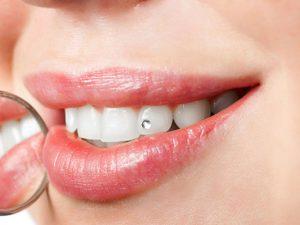 Zahnarzt Altusried Zahnschmuck
